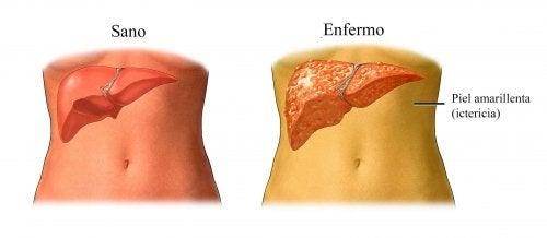 Желтуха и хроническое воспаление печени
