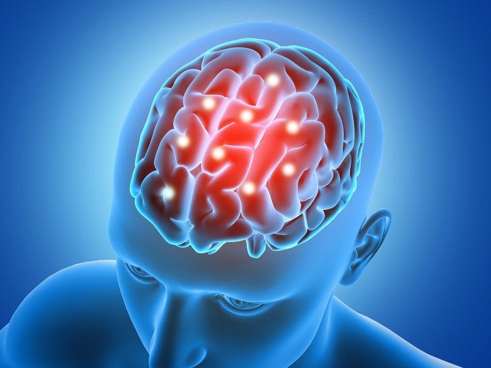 Зеленое яблоко и головной мозг