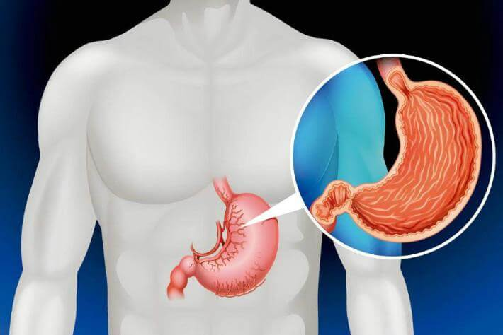 Желудок и организм