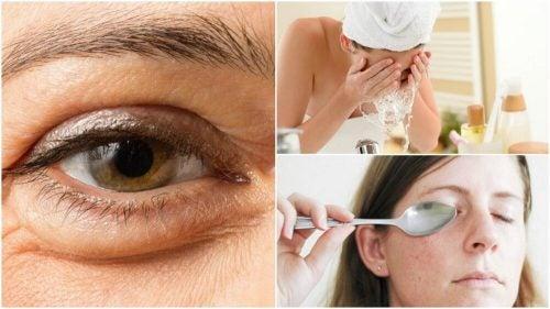 6 натуральных средств, чтобы убрать мешки под глазами