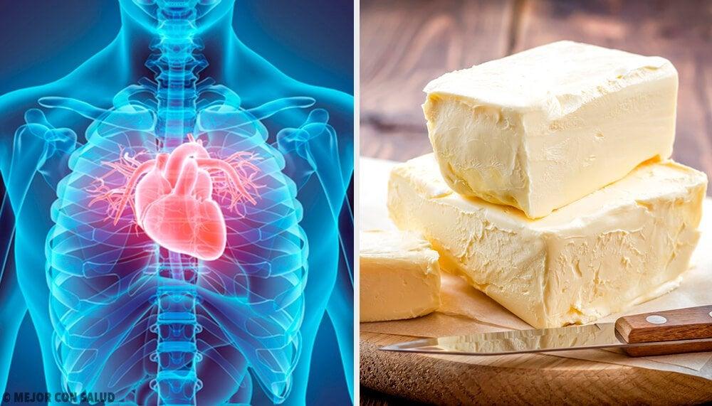 5 продуктов, которые вредят здоровью сердца