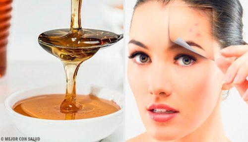Здоровая кожа: 4 натуральных рецепта для ухода за лицом