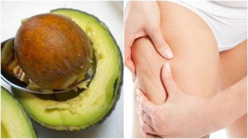 Средство лечения целлюлита на основе косточки авокадо