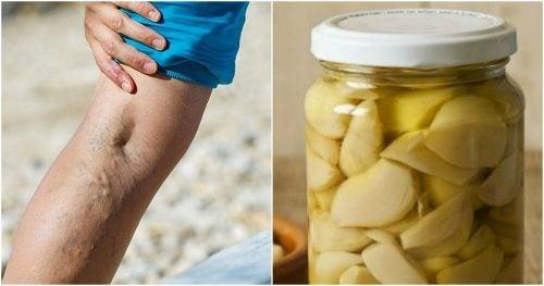 Домашнее средство из чеснока и апельсина против варикозного расширения вен