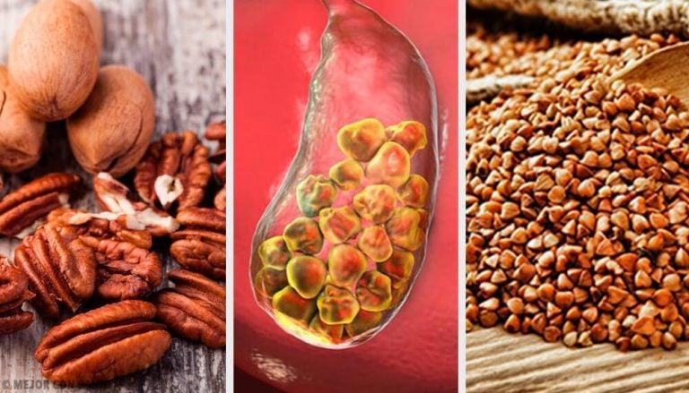 6 продуктов, которые облегчают выведение камней из желчного пузыря
