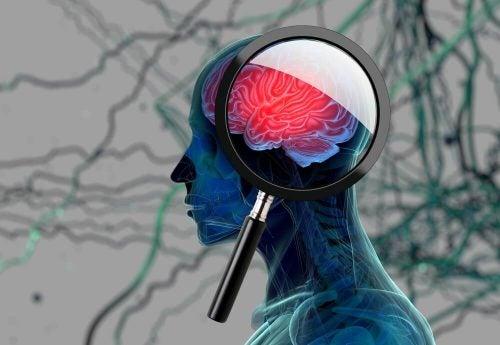 Потеря памяти и болезнь альцгеймера