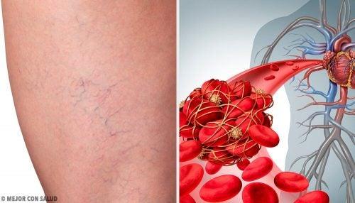 Флебит: 3 лучших домашних средства лечения воспаления вен