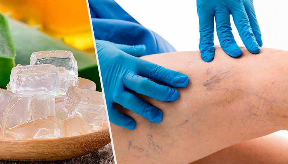 5 альтернативных вариантов для лечения варикоза
