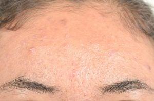 Вылечить себорейный дерматит