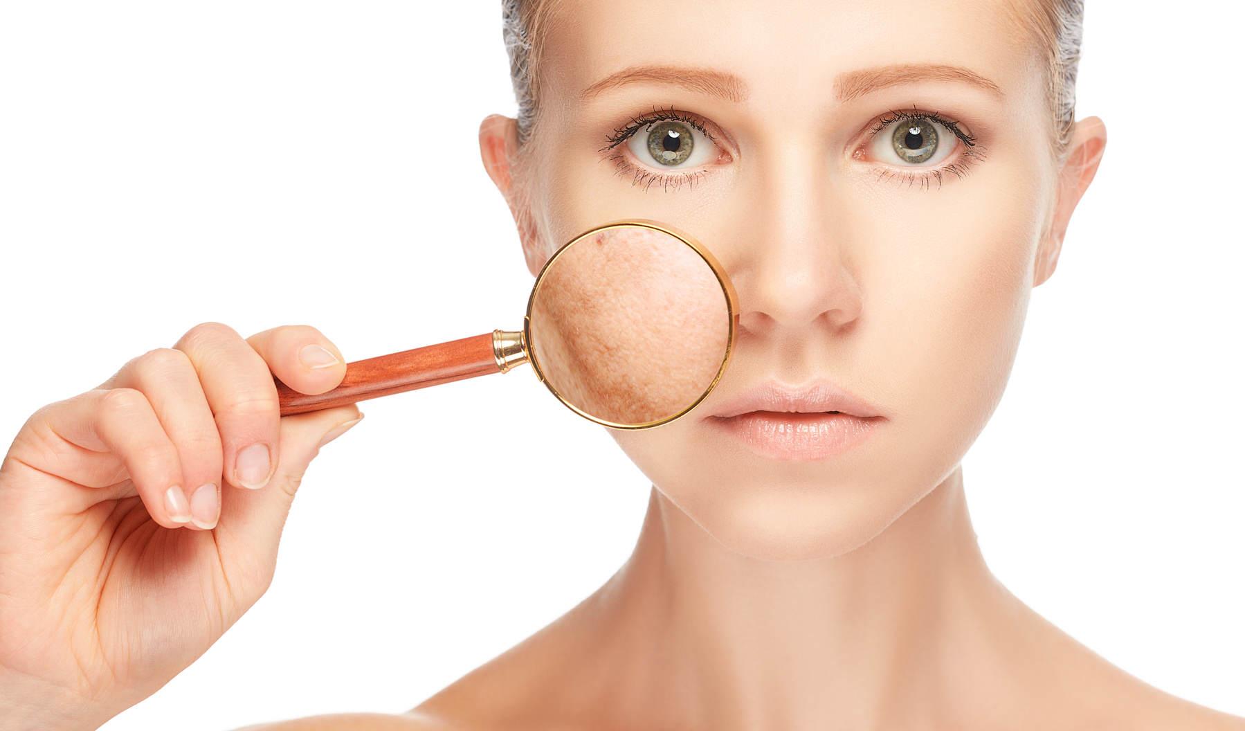 Гиперпигментация кожи на лице