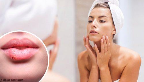 13 видов следов на лице, которые нам оставляют болезни