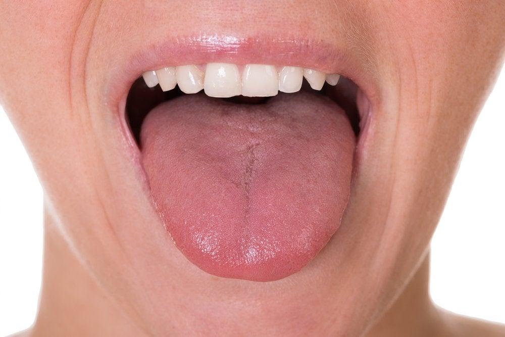 Язык и налёт в горле