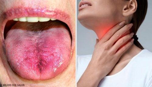 6 способов узнать, есть ли у вас налёт в горле