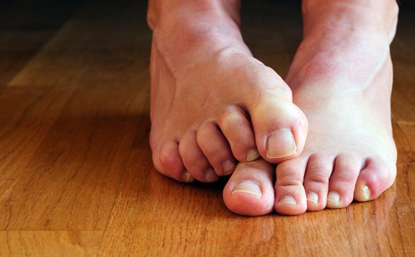 Лечим грибок и укрепляем ногти