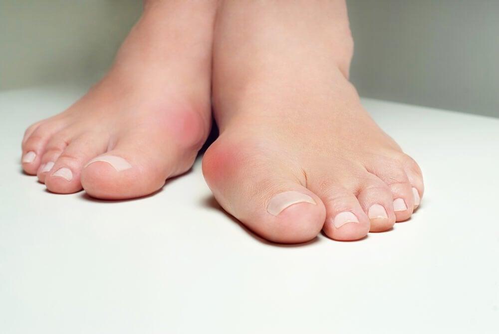 5 травяных средств от выступающей косточки на ногах