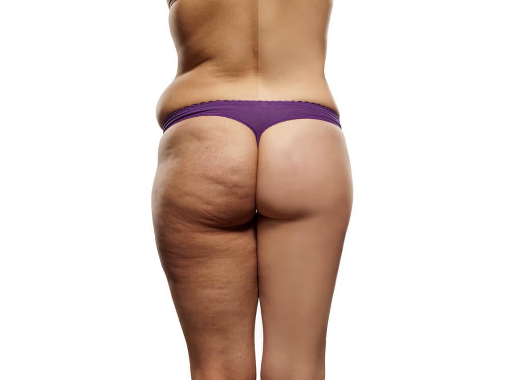Какая она, антицеллюлитная диета?