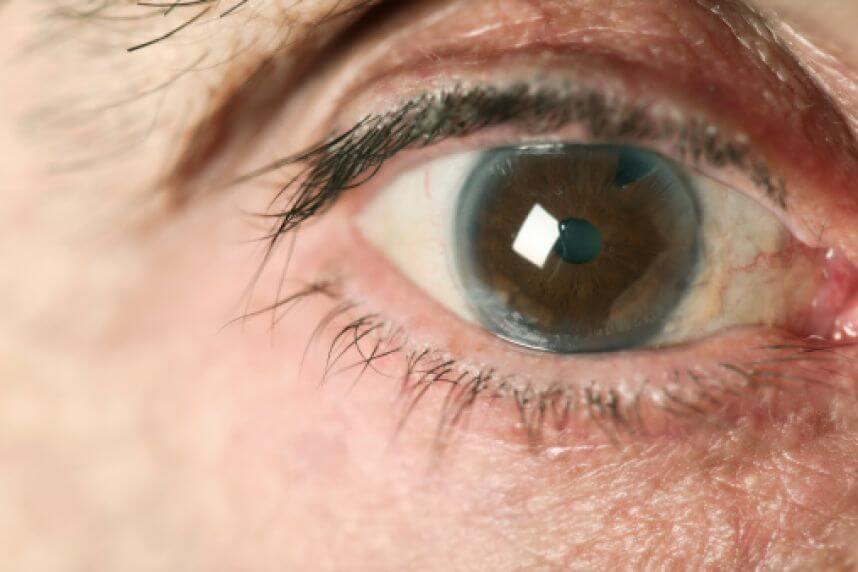 Что делать при глаукоме