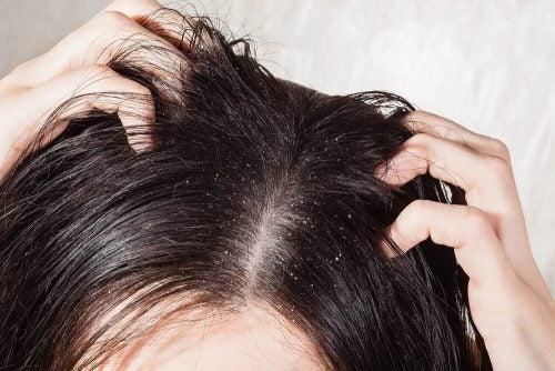 Грибок кожи головы: 6 натуральных средств для лечения