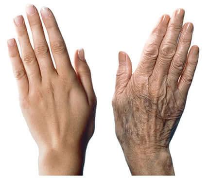 7 рекомендаций, как защитить руки от старения