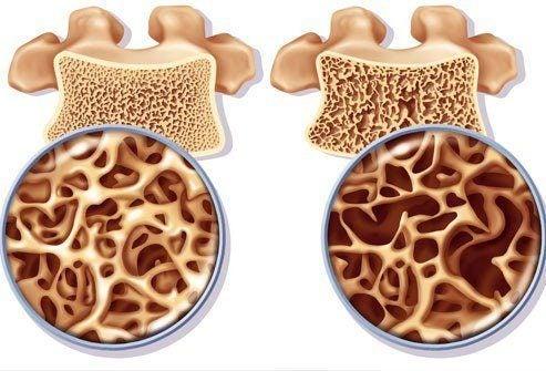 Как предотвратить остеопороз: смузи с кальцием