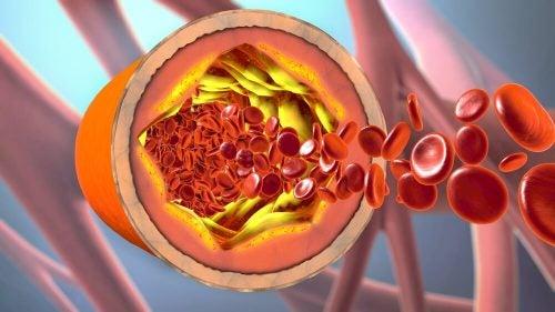 Что делать чтобы очистить артерии
