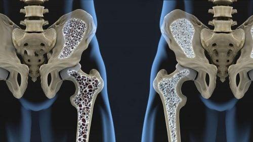 Чтобы предотвратить остеопороз, попробуйте эти 6 советов