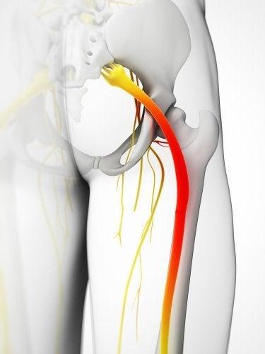 Защемление седалищного нерва: 5 компрессов, чтобы облегчить боль