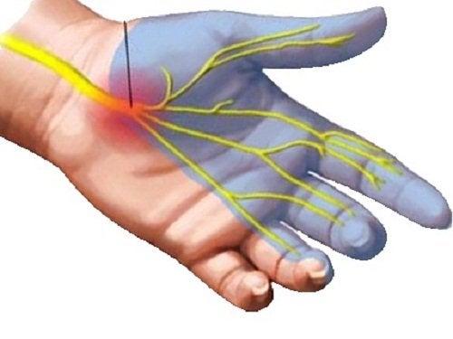 Боль в запястье при синдроме запястного канала