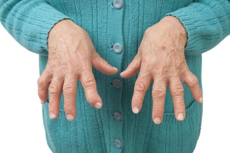 Эти натуральные лекарственные средства помогут снять боль при ревматоидном артрите