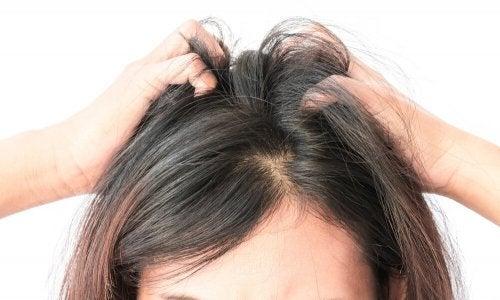 Беспокоит зуд кожи головы? Вам помогут эти 5 домашних средств!