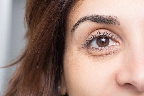 Круги и мешки под глазами: 10 полезных советов, как их избежать