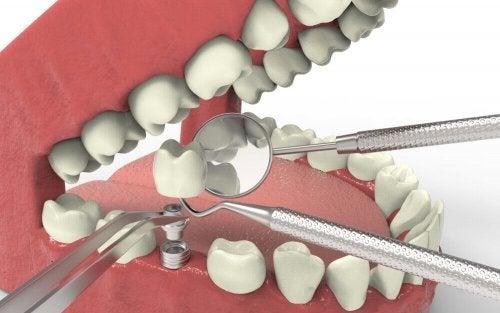 Агенезия зубов и методы лечения