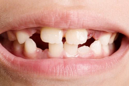 Агенезия зубов: типы и основные методы лечения