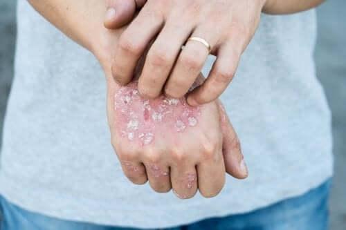 5 травяных средств для лечения псориаза