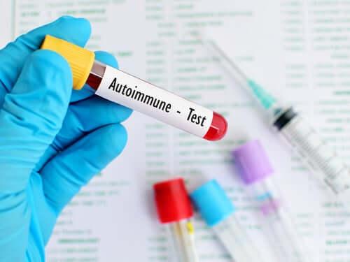 Аутоиммунные заболевания и их профилактика