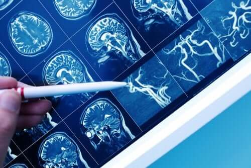 Сосудистая деменция: все, что нам о ней известно