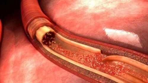 Что такое расслоение аорты? Отвечает специалист