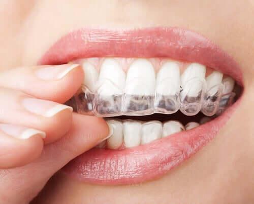Невидимая ортодонтия альтернатива брекетам