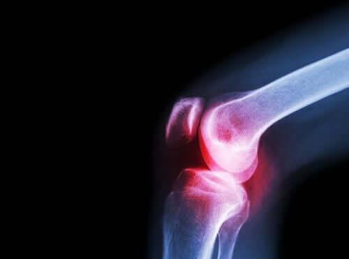Ацеклофенак и артрит