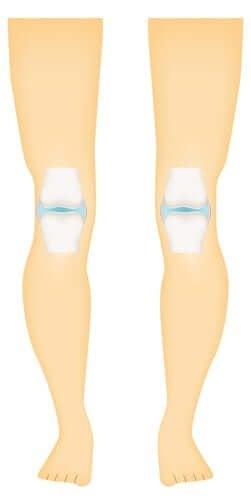 Синовиальные суставы: типы и строение суставов