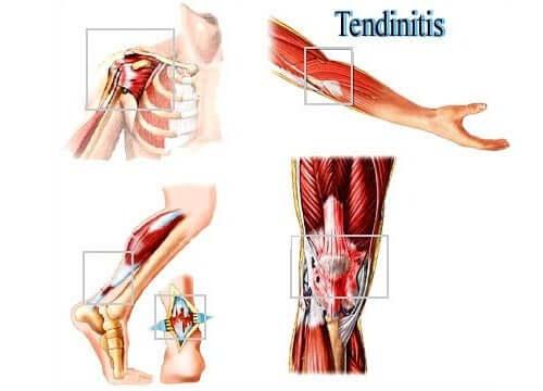 Тендинит и травмы мягких тканей