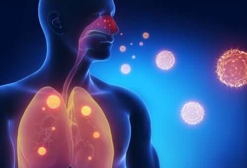 Как облегчить симптомы гриппа: 3 целебных настоя
