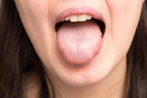 Гвоздика для полости рта