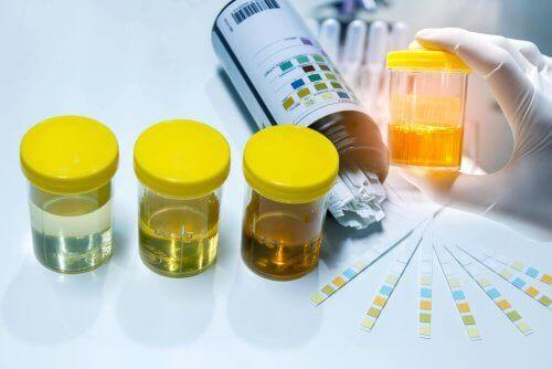 Анализ на нитриты в моче
