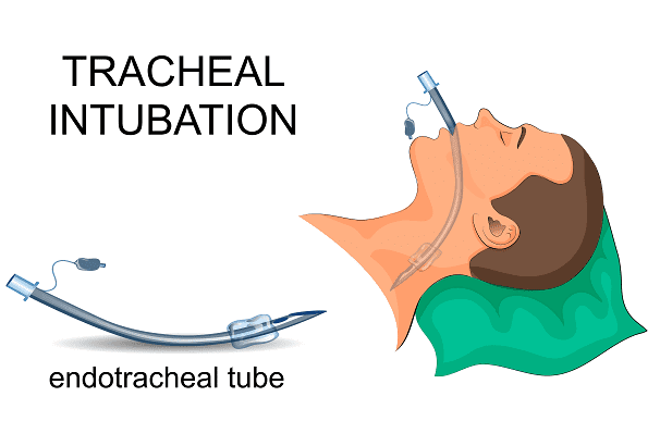 Эндотрахеальная трубка