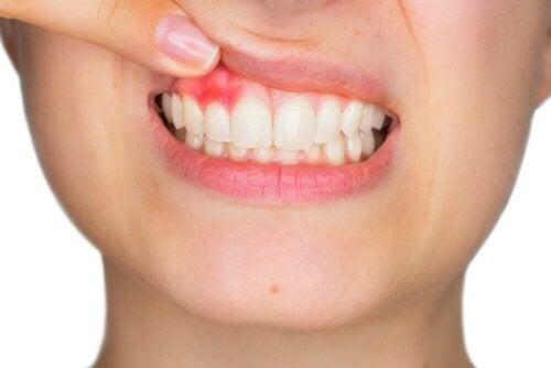 Ополаскиватель для рта при гингивите