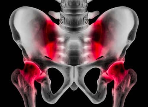 Пубалгия: причины, симптомы и методы лечения