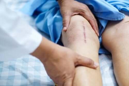 Восстановление после трансплантации коленного сустава