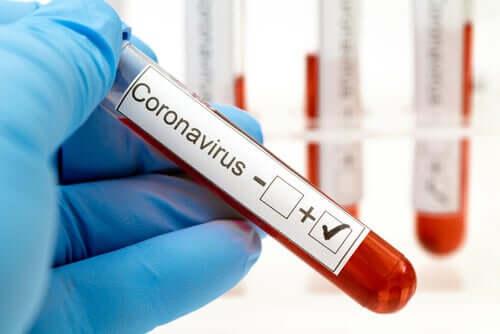 Аналих крови на коронавирус