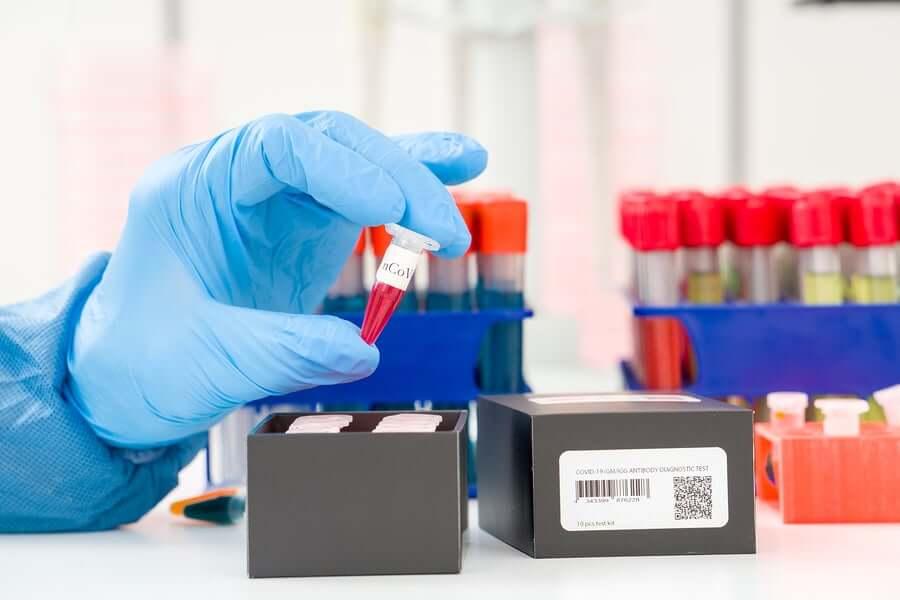 Обнаружение коронавируса: что такое ПЦР?